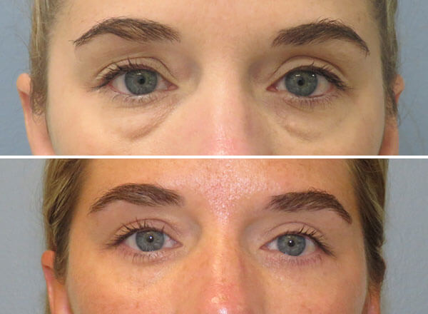 Before and After Eyelid Surgery Richmond Virginia