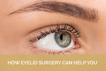how eyelid surgery can help you