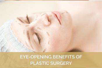 EYE-OPENING BENEFITS OF PLASTIC SURGERY