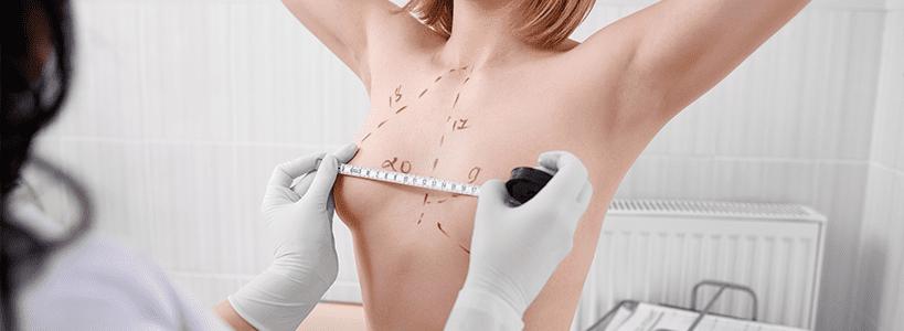 Benefits of Breast Augmentation