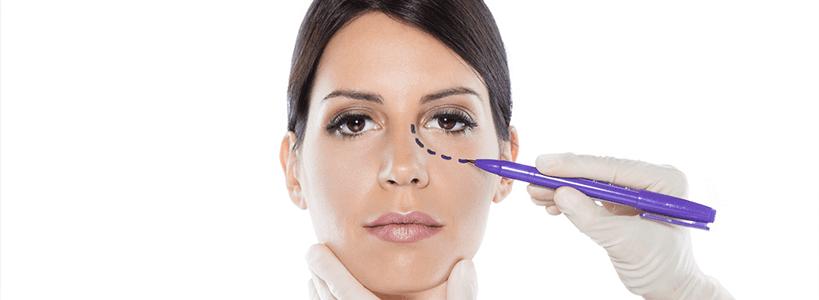 Pros of Eyelid Surgery