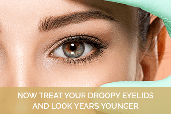 How to treat your droopy eyelid and look years younger
